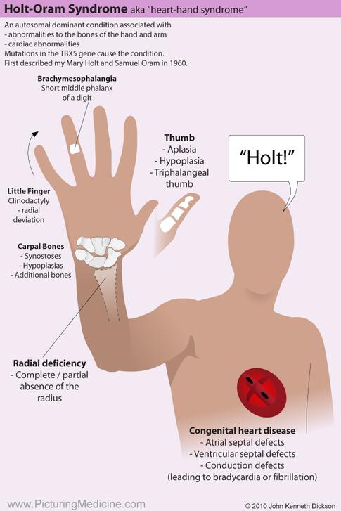 Holt Oram Syndrome