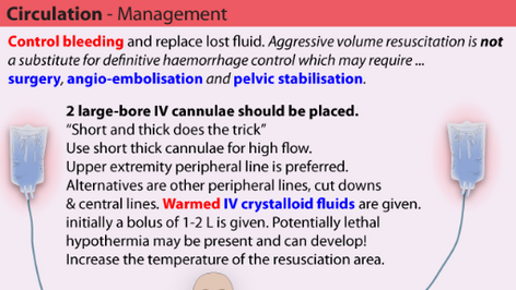 Circulation Management in Trauma