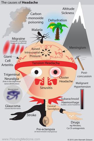 Causes of Headaches