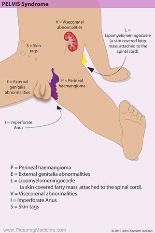 PELVIS Syndrome