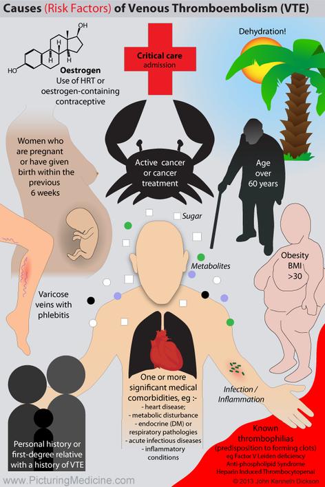 Causes of VTE Venous Thromboembolism or DVT Deep Vein Thrombosis