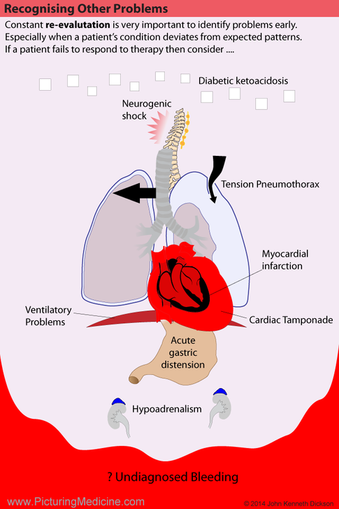 Recognising other circulatory problems