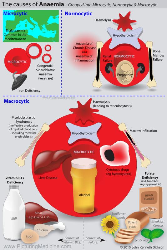 Causes of Anaemia