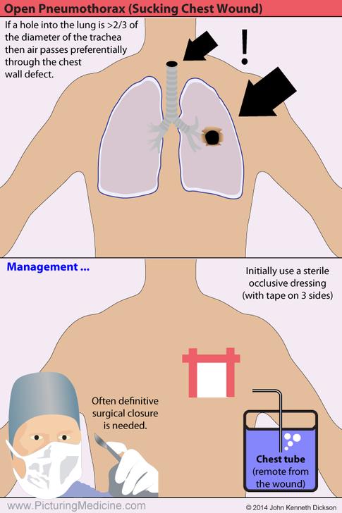 Open (or sucking) Penumothorax