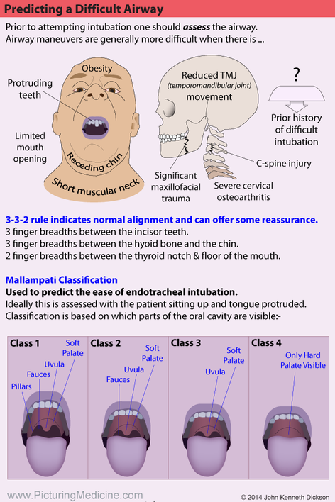 Mallampati Classification for Airway Assessment