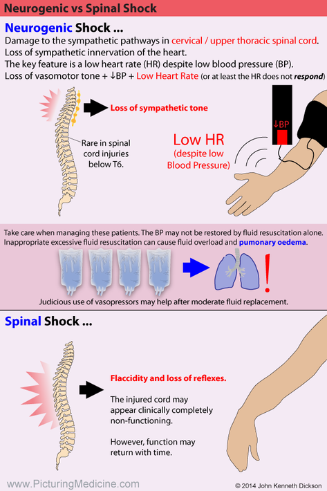 Spinal Shock vs Neurogenic Shock