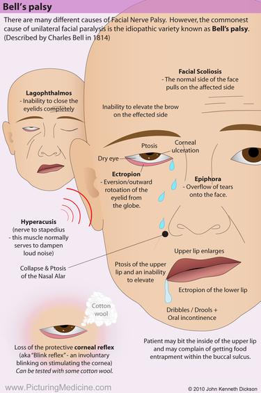 Bell's Palsy (Facial Palsy)