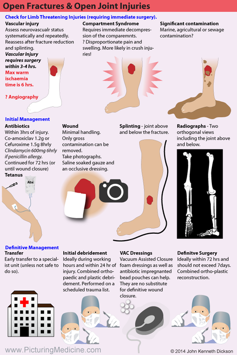 Open Lower Limb Fractures