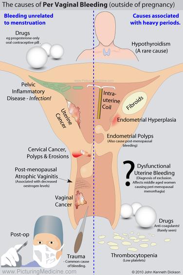 Causes of Per Vaginal Bleeding