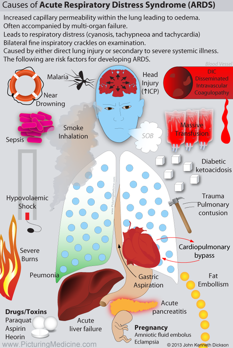 Causes of ARDS Acute Respiratory Distress Syndrome