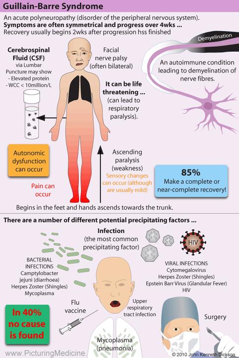Gullain Barre Syndrome