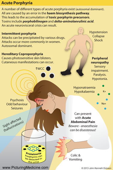 Acute Porphyria