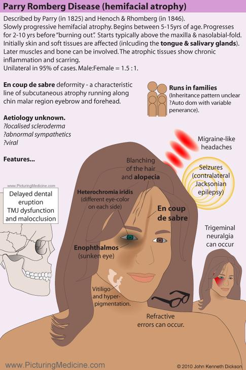 Parry Rhomberg Disease