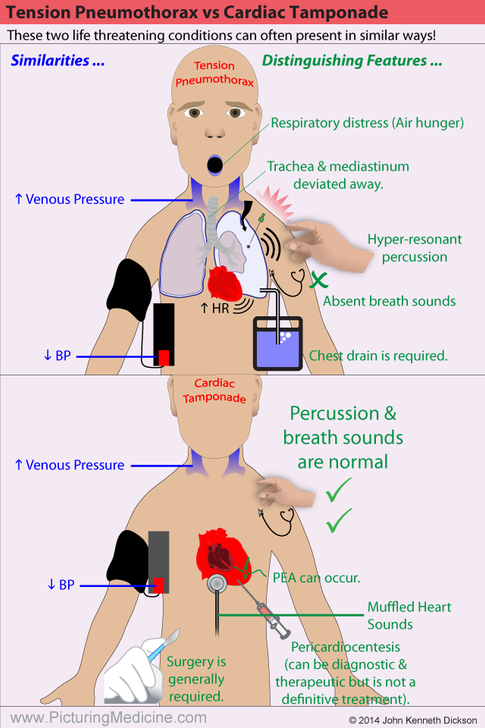 Tension Pneumothorax vs Cardiac Tamponade