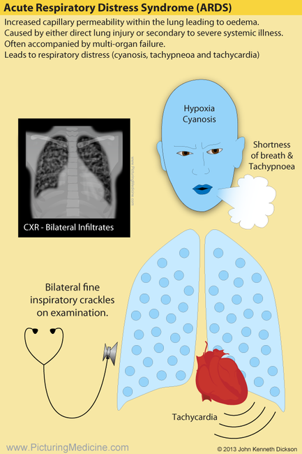 ARDS Acute Respiratory Distres Syndrome