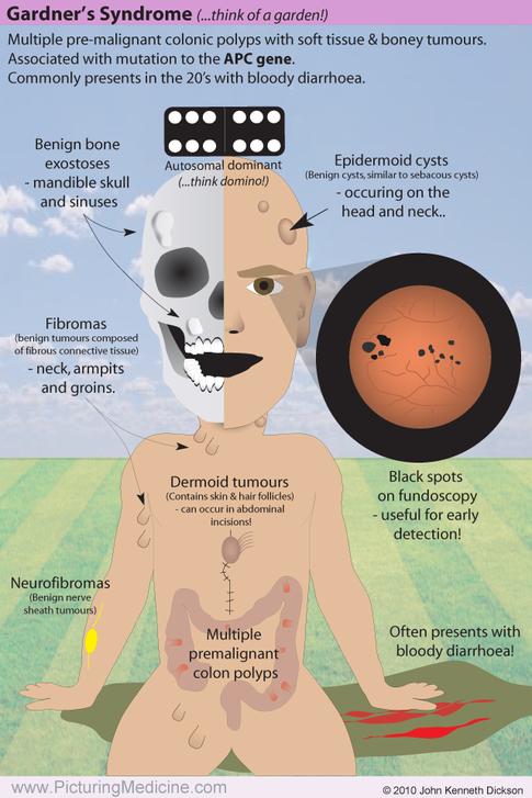 Gardner Syndrome