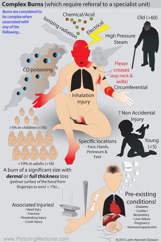 Features of Complex Burns