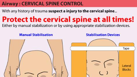 Cervical Spine Control