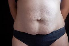 postnatal tummy