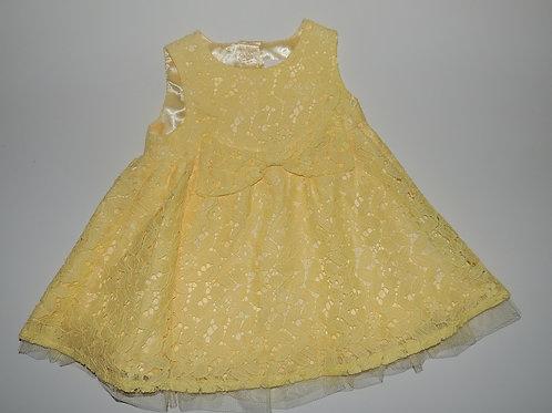 Girls Yellow Lace Dress