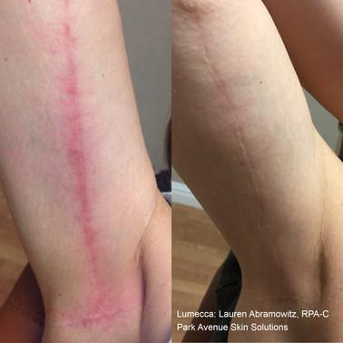 arm scar.jpg