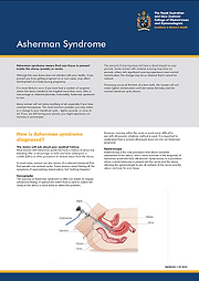 Information on Asherman Syndrome