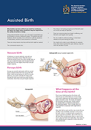 Assisted/instrumental birth