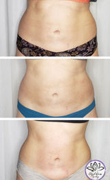 Flanks and abdomen fat reduction