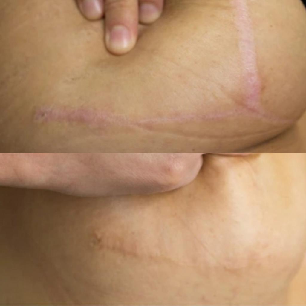 Scar Camouflage- Skin Micropigmentation