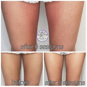 Inner thigh skin tightening