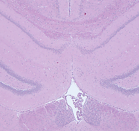 Hematoxylin and eosin rat brain.png