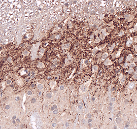 Substance P IHC rat dorsal horn spinal c