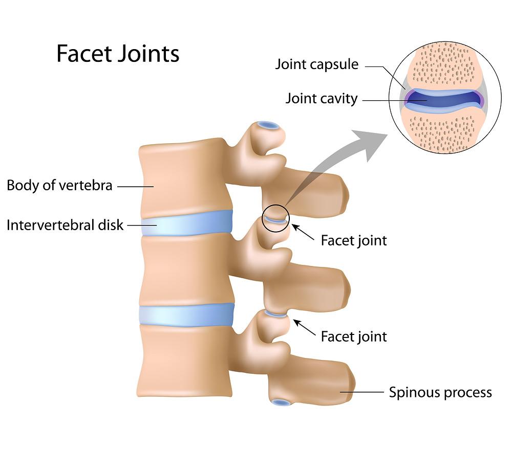 Wry neck pain, facet joint pain