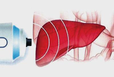 elastografia-hepatica.jpg
