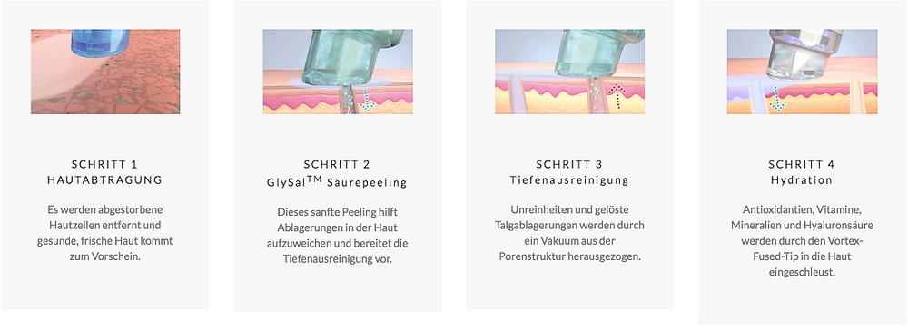 Die vier Schritte der Hydrafacial Behandlung bei EWA MEDICAL BEAUTY in München, Ludwigsvorstadt. Die Adresse für Hydrafcial in München.