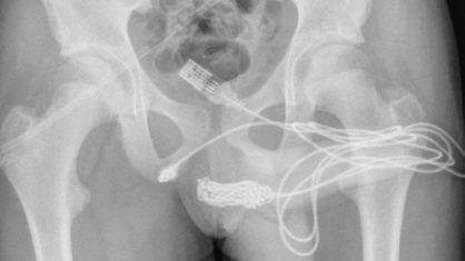Inusitado: Jovem é operado após inserir cabo USB no pênis para tentar medir órgão