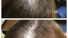 ボリュームアップエクステ、増毛技術のご紹介