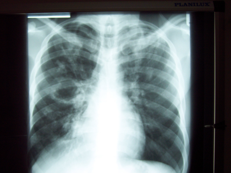 Tuberculosis Original research 'If not TB, what could it be?'