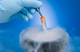 Semen Freezing & Shipping