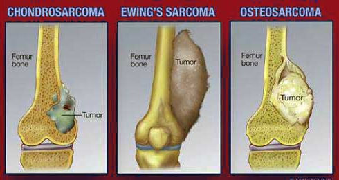 Types-of-Bone-Cancer.jpg