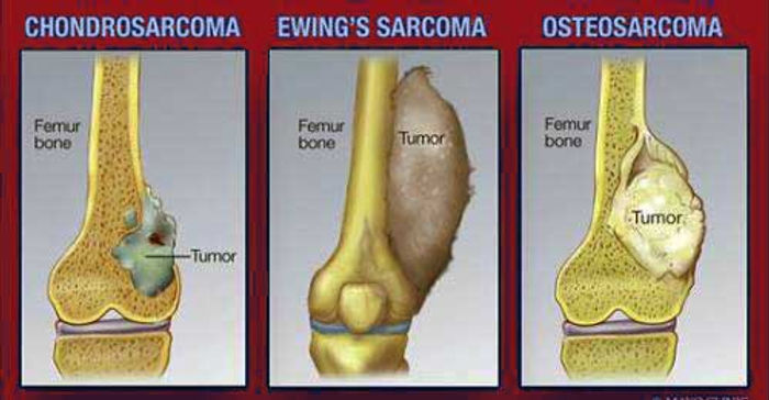 Types-of-Bone-Cancer.jpg