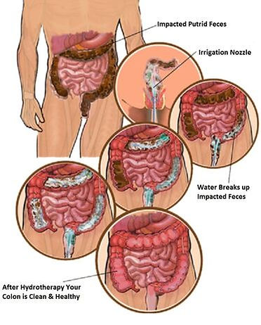 colon-hydrotherapy-final-large.jpg