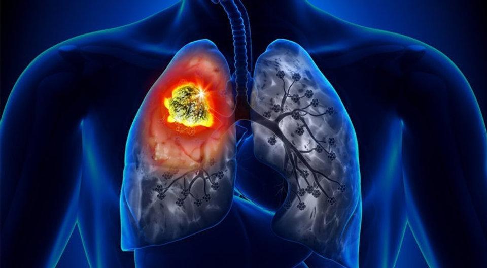 lung_cancer.jpg