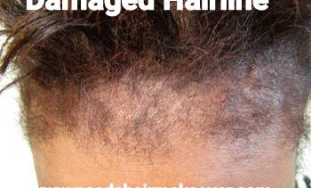 damaged hairline