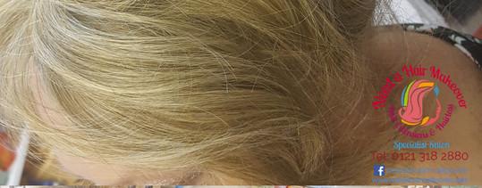 hair loss disguise