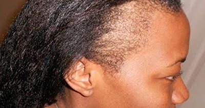 traction alopecia