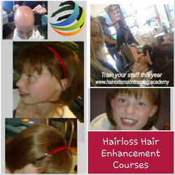 Hair loss in Children hair extension techniqes