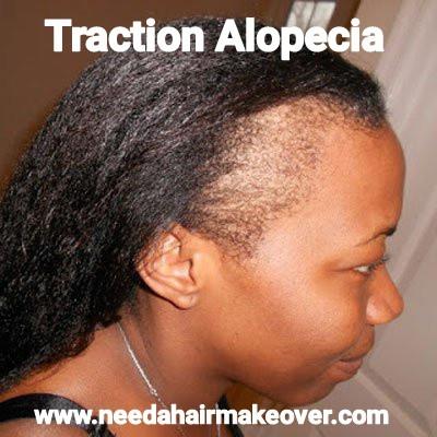 traction alopecia suferer