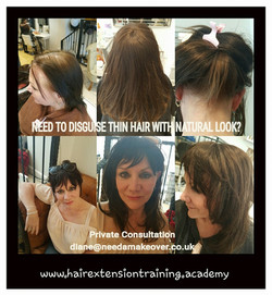 hair loss techniques