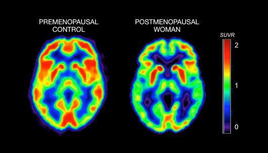 PET scan premenopausal and postmenopausal womens brain activity
